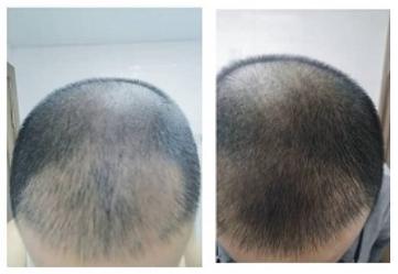 рост волос бьютик фото 1